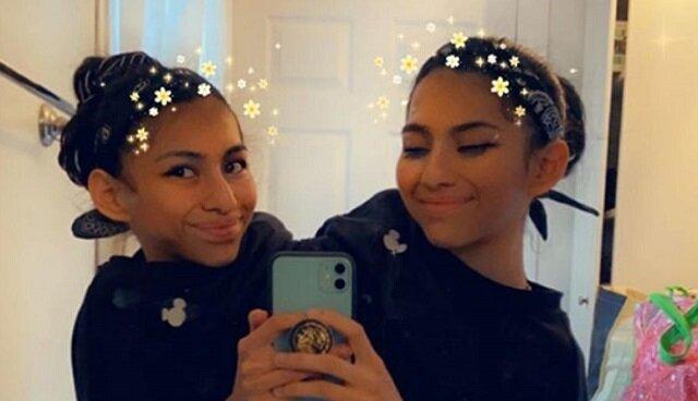 19-letnie bliźniaczki syjamskie zorganizowały sesję zdjęciową i zachwyciły internautów