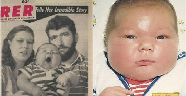 W 1983 roku urodziło się dziecko o wadze 7,2 kg. Jak ono żyje 36 lat później?