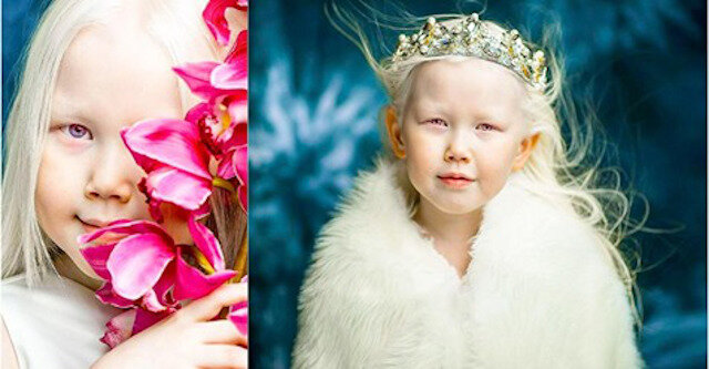 Królewna Śnieżka istnieje: albinoska podbija światowe agencje modelek